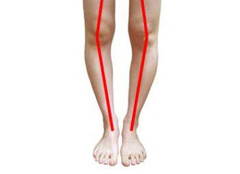 درمان پا پرانتزیها با ورزش
