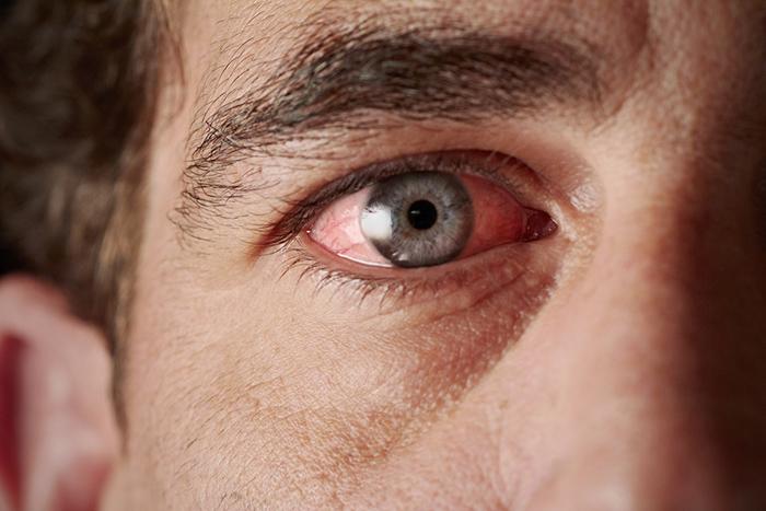 درمان خانگی خستگی چشم