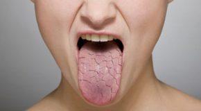 طب سنتی در مورد خشکی دهان چه میگوید؟