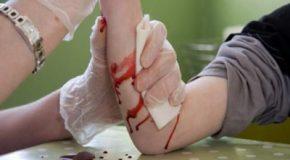 ۸ روش خانگی برای توقف خونریزی