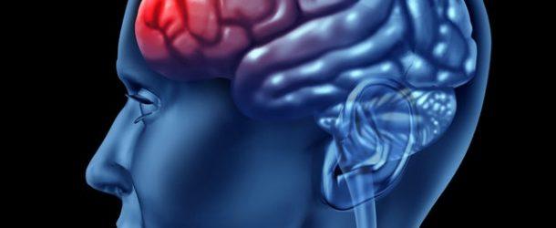 شرایط مغز در زمان اضطراب به چه صورتی است؟